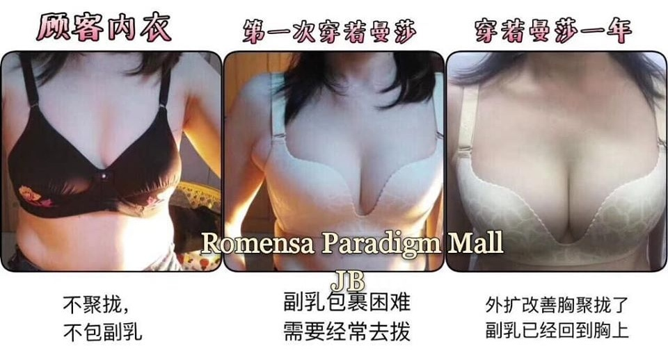 breast after wearing Romensa 12 month