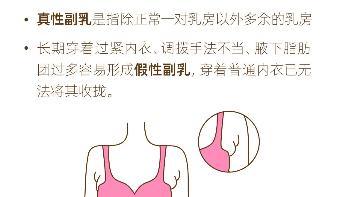 日常常见的胸型问题有哪些❓
